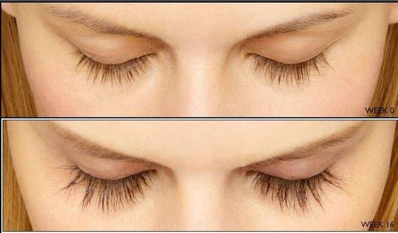 eyelash grow back